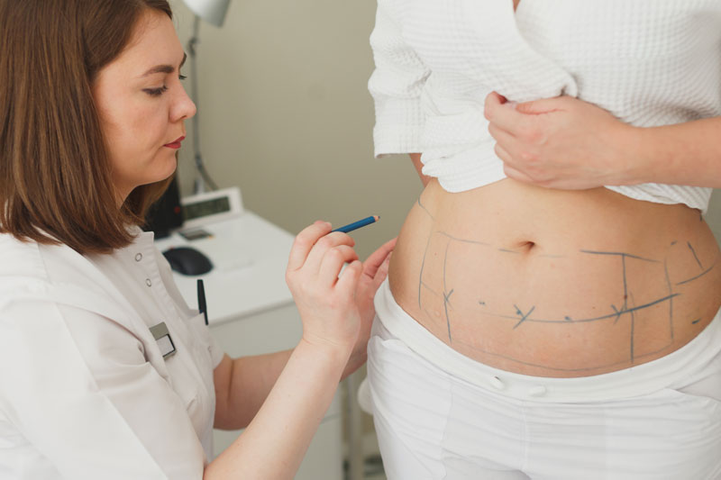 areas-of-lipo